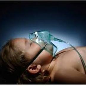 sindrome-di-ondine-o-di-ipoventilazione-alveolare_563799