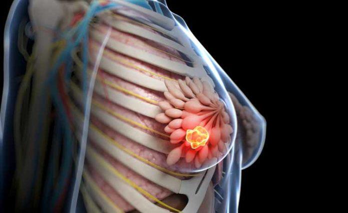 Tumore al seno metastatico, le nuove terapie a bersaglio molecolare meglio della chemio.