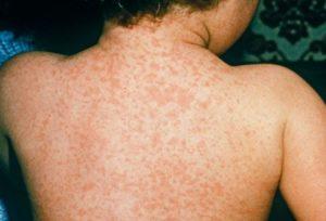 morbillo sintomi e complicanze vaccino