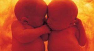 Gemelli salvati nel grembo della mamma affetta da tumore