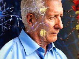 Malattia di Alzheimer, individuato il gene che combatte la malattia