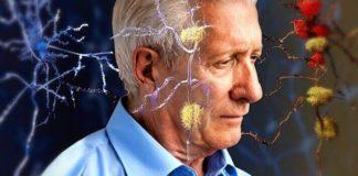 Alzheimer, un nuovo esame del sangue per diagnosticare la malattia in anticipo