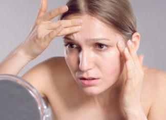 """""""Dalla parte della tua pelle"""", a Napoli visite dermatologiche gratuite"""