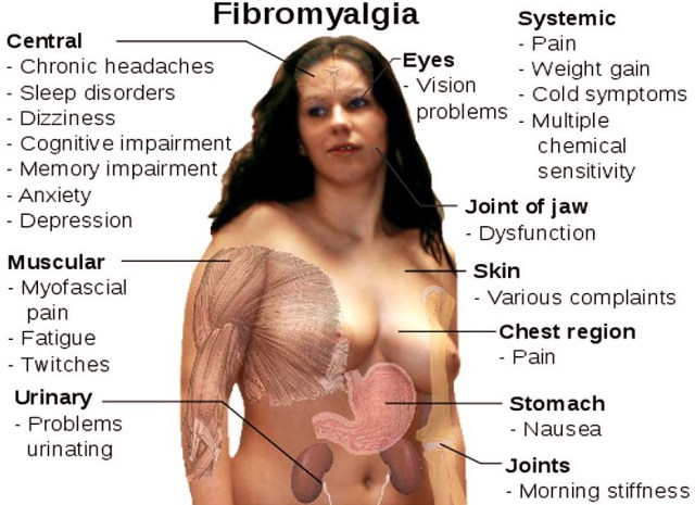 Fibromialgia, una malattia fantasma: Sintomi, cause e terapie