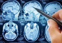 Sclerosi Multipla, arriva il primo farmaco per bambini