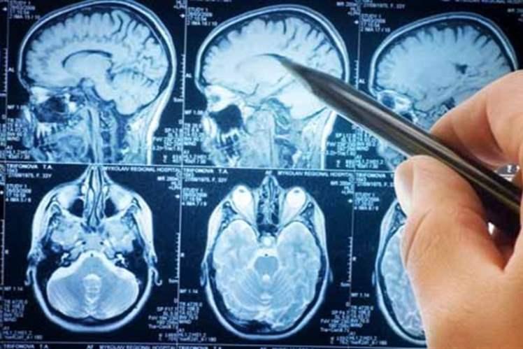 Sclerosi multipla, approvato primo farmaco per adolescenti