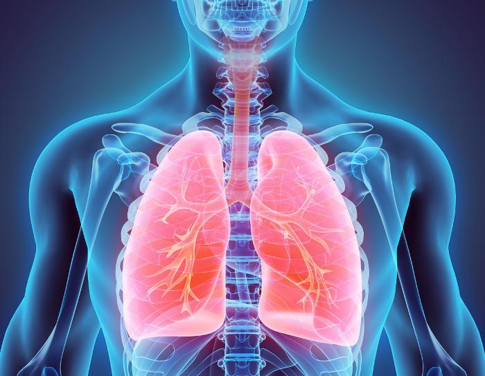 Polmonite, 148 casi nel bresciano in una settimana. Si teme un'epidemia.
