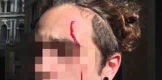 Salvini a Napoli, tensione tra polizia e centri sociali: ferito un manifestante