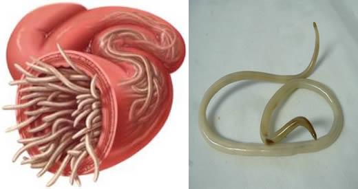 Pozzuoli, Monteruscello: 7 casi di infezioni da vermi nel plesso 'Rodari'