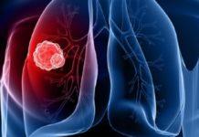 Cancro ai polmoni: nuovo farmaco cala dell'80% i rischi di ricaduta