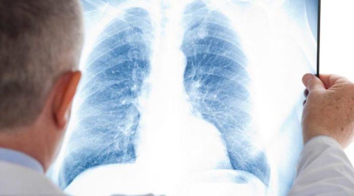 Malattia da Coronavirus e danno polmonare cronico. L'opinione dell'esperto