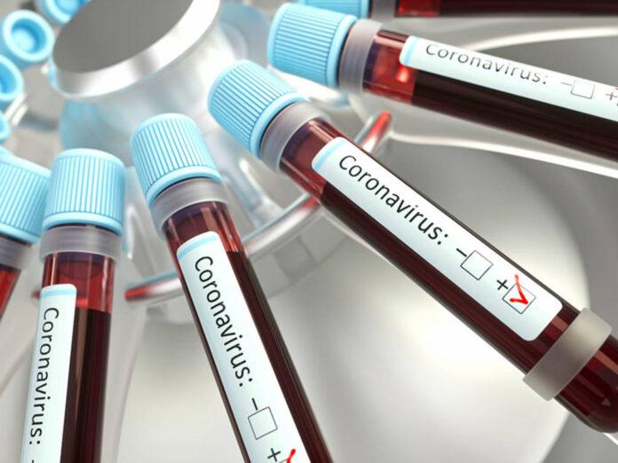 Coronavirus, un gruppo sanguigno corre meno rischi